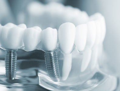 Implanty Dentium